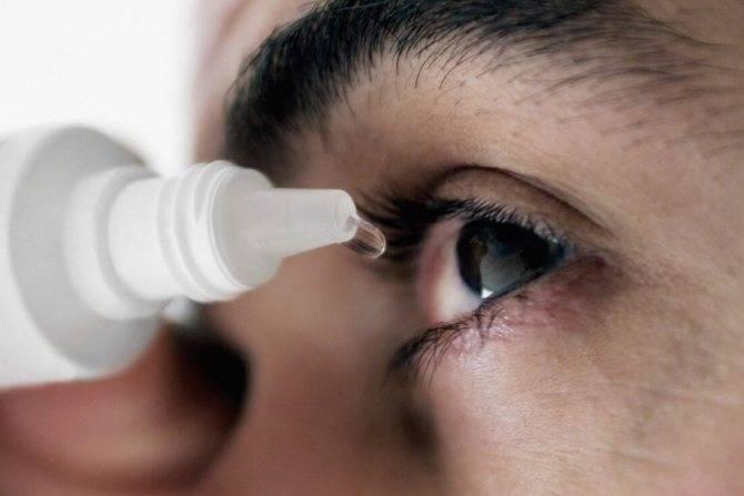 Ожог глаз вследствие сварочных работ