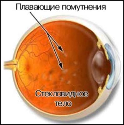 Деструкция стекловидного тела или в обиходе - мушки перед глазами