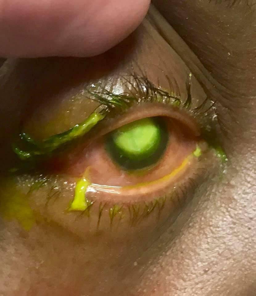 Что делать, если горячее масло попало в глаз