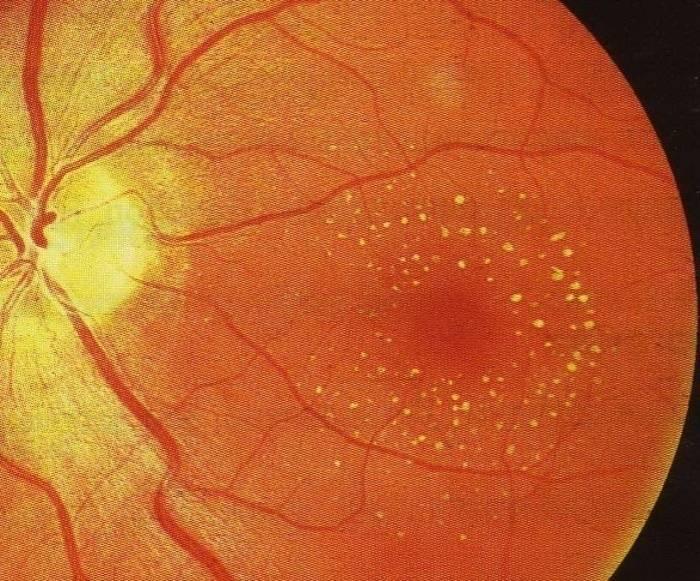 Дистрофия сетчатки глаза: причины, симптомы дегенерации, лечение истончения уколами, каплями и народными средствами