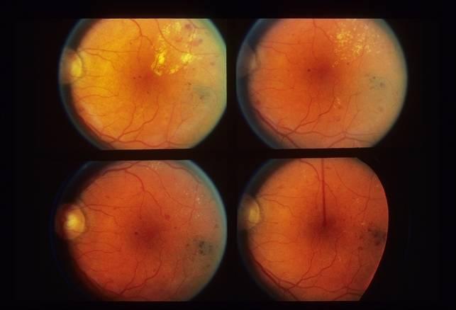 Что такое фоновая ретинопатия и ретинальные сосудистые изменения oculistic.ru что такое фоновая ретинопатия и ретинальные сосудистые изменения