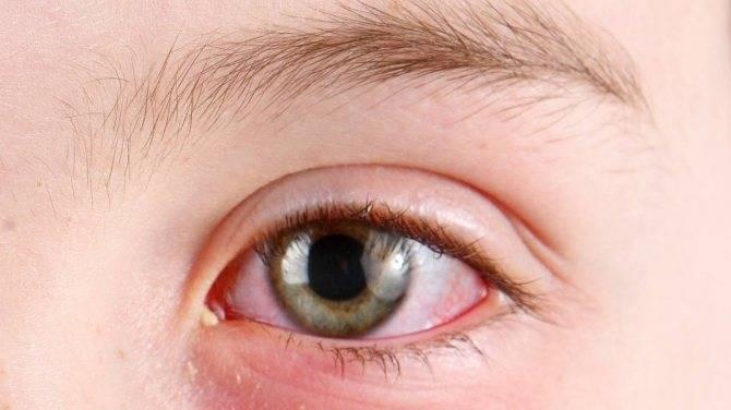 Причины, по которым слезятся глаза у ребенка: это физиологический процесс или признаки серьезного заболевания?