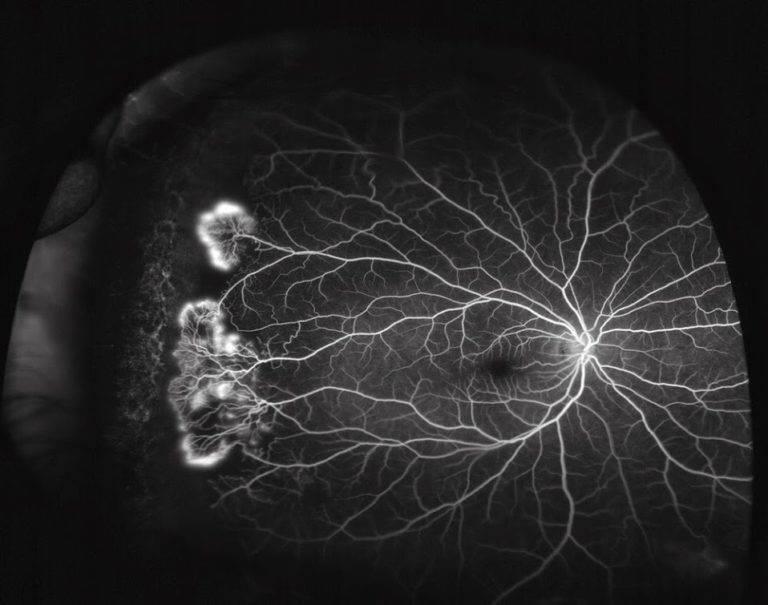 Флуоресцентная ангиография сетчатки (фаг) — запись на исследование в цэлт!