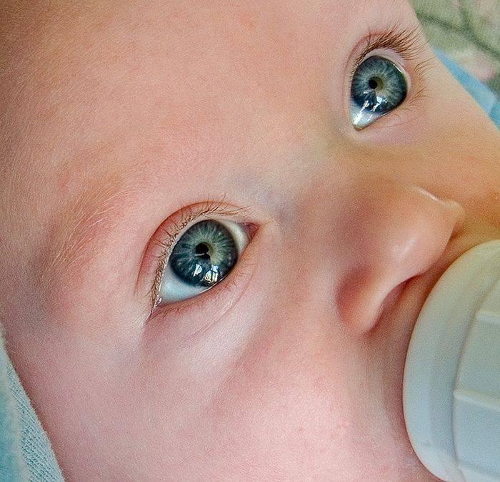 Причины пожелтения белков глаз у новорождённых — симптомы, лечение
