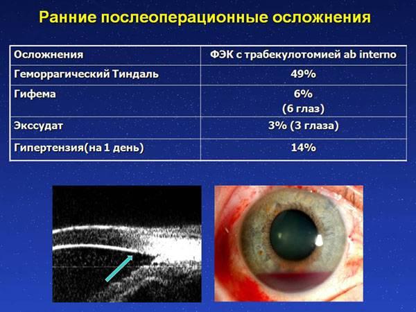 Как предупредить осложнения после удаления катаракты с заменой хрусталика?