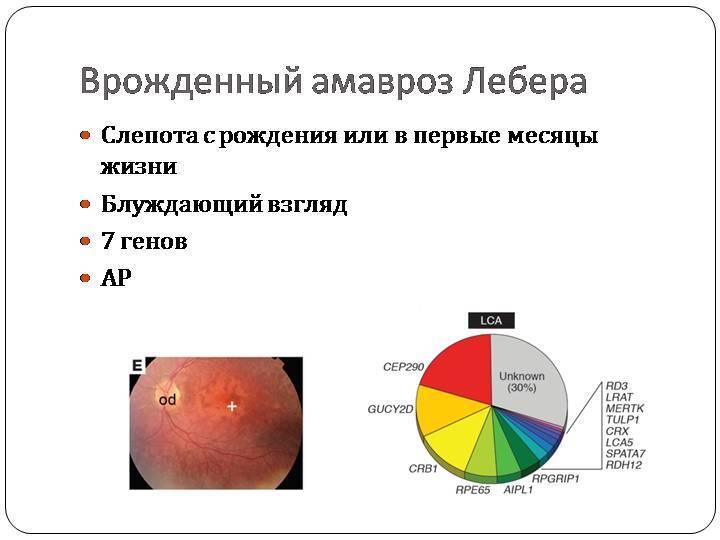 Врожденный амавроз лебера: возможные причины, симптомы и особенности лечения