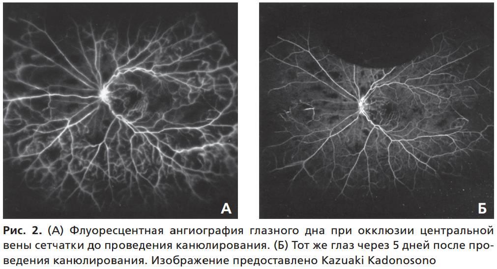 Что такое ангиография сетчатки глаза, и когда её назначают?