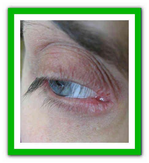 Ресничный клещ: симптомы и лечение - лечениевед