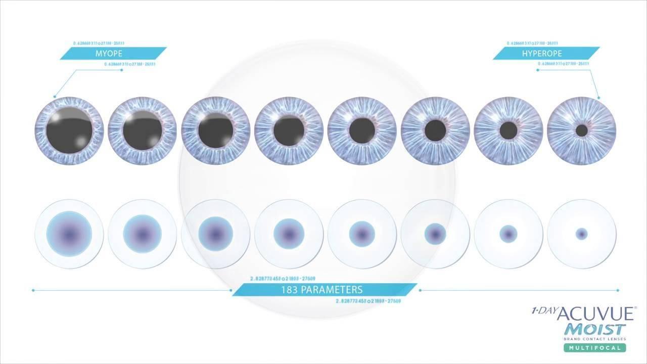 Мультифокальные контактные линзы: плюсы и минусы, как подобрать, отзывы