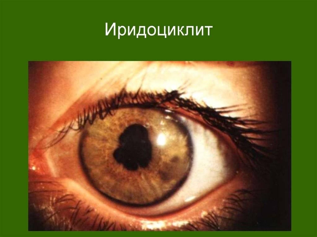 Иридоциклит - что такое, симптомы, причины, лечение, диагностика, прогноз