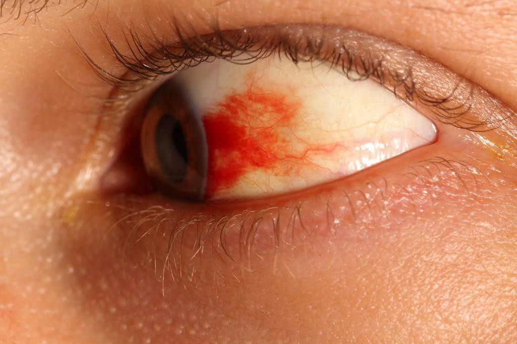 От чего возникает боль в глазу при движении глазного яблока