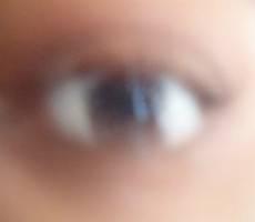 Почему возникает пелена в глазах
