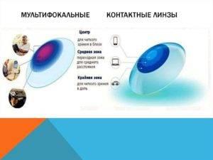 Подбор контактных линз при пресбиопии: случаи «на передовой» | ochki.com
