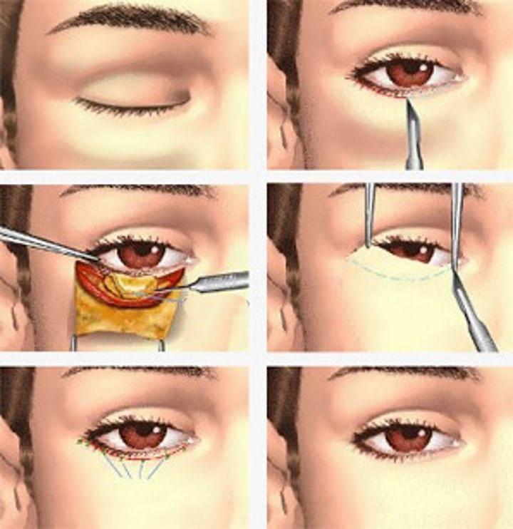 Коррекция зрения - что это такое? когда она нужна? анализы и обследования для успешной коррекции