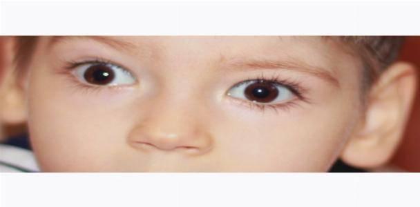 Колобома глаза – как диагностируется и лечиться патология