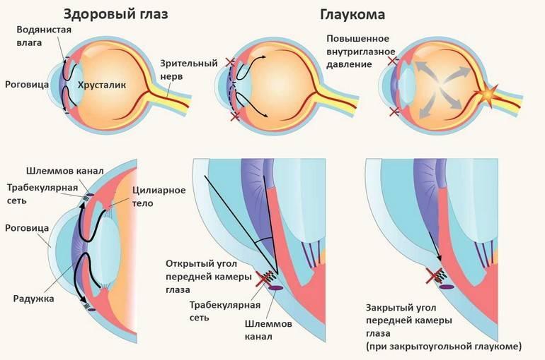 Глаукома: лечение, симптомы, причины и профилактика