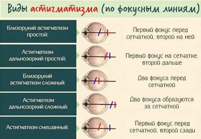 Симптомы и методы лечения гиперметропического астигматизма