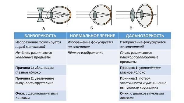 Какие линзы применяются при близорукости – контактные линзы при миопии