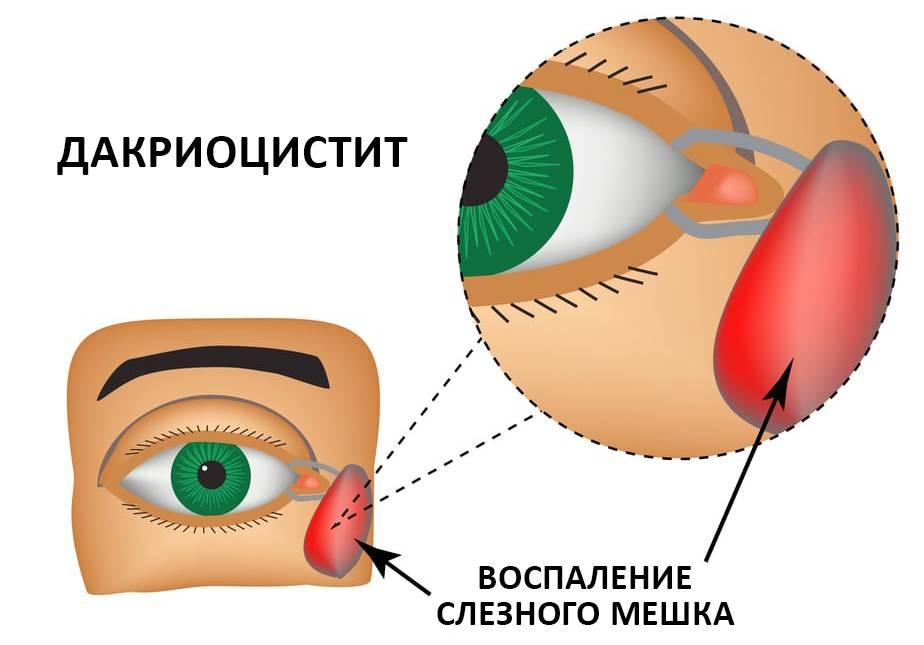 Дакриоцистит, причины, симптомы, лечение дакриоцистита. все о глазных болезнях.