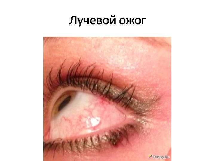 Ожог глаз от сварки: чем лечить и что делать