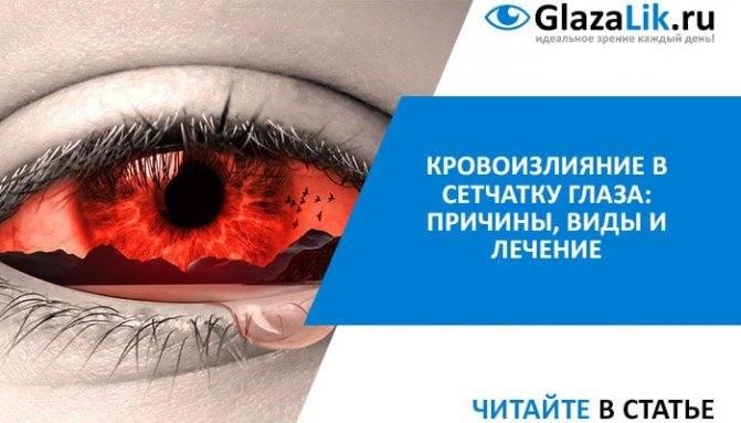 Как убрать кровоизлияние в глазу   медик03
