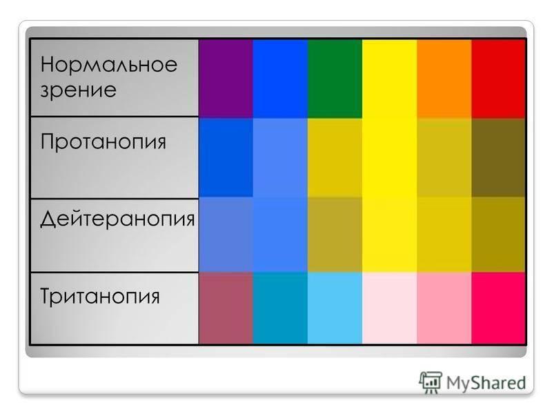 Цветоаномалия - причины, симптомы, диагностика, лечение