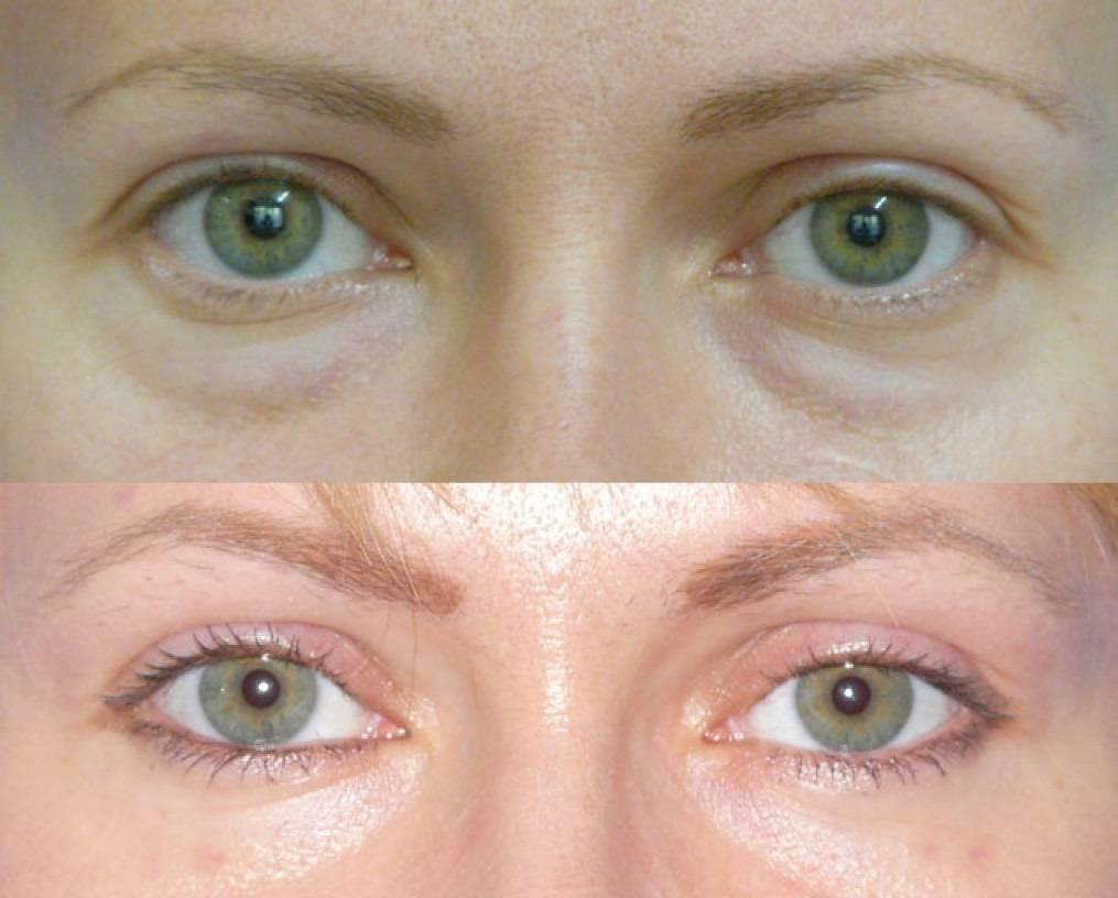 Грыжа под глазами: лечение народными средствами и операция