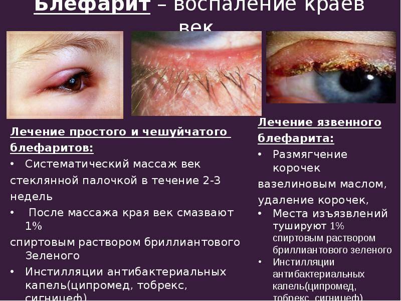 Лучшие глазные капли для лечения блефарита у взрослых и детей