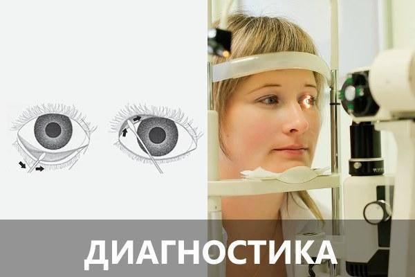 Болит голова и больно поворачивать глаза в сторону