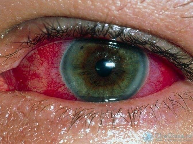 Заболевание увеит глаза: чем опасно, как лечить