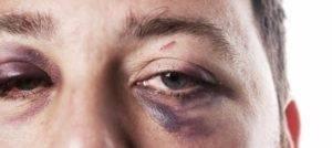 Глаз стал плохо видеть после удара - медицина - здорово!