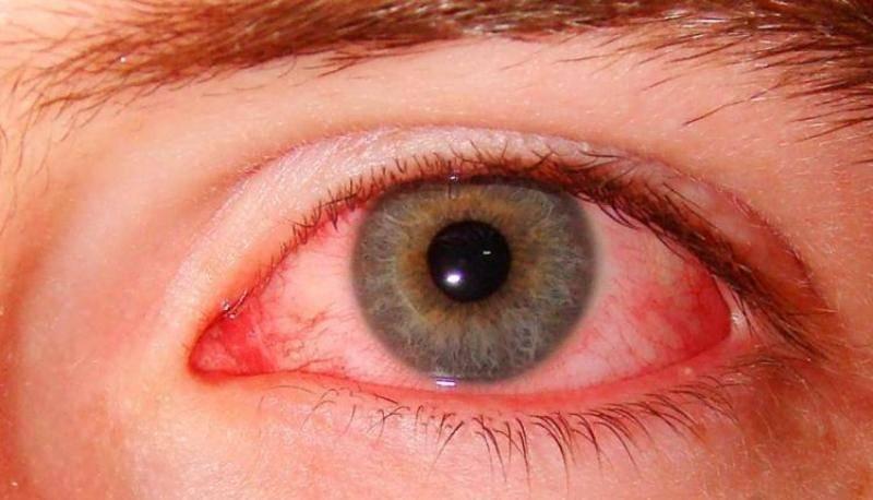 Что делать, когда глаза красные и слезятся: 5 эффективных средств