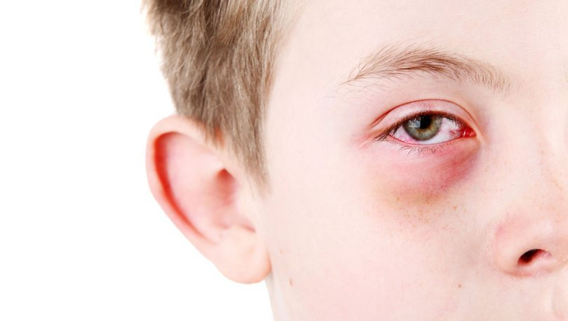 Застудил глаз болит