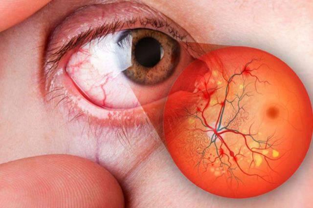 Виды и симптомы ангиопатии сетчатки