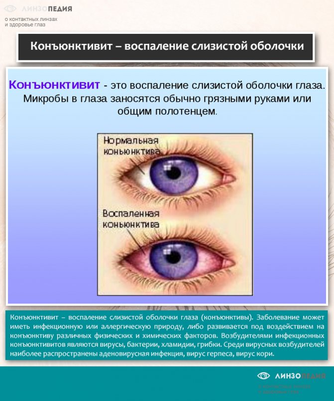 Блефароконъюнктивит глаз: симптомы и лечение (хронический и демодекозный)