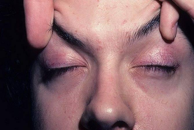 Почему болит бровь над глазом: причины и лечение
