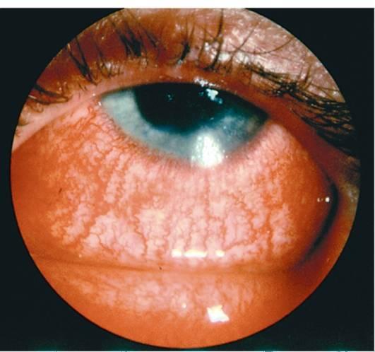 Хламидийный конъюнктивит у ребенка | симптомы и лечение хламидийного конъюнктивита у ребенка | компетентно о здоровье на ilive