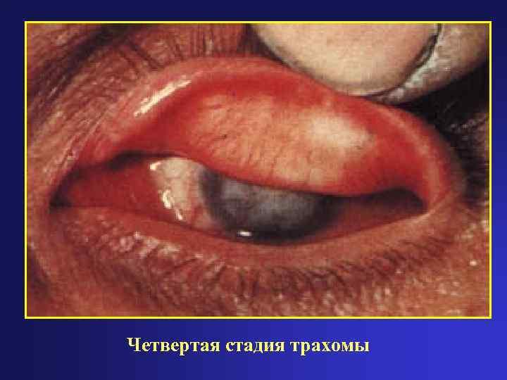 Хламидийный конъюнктивит