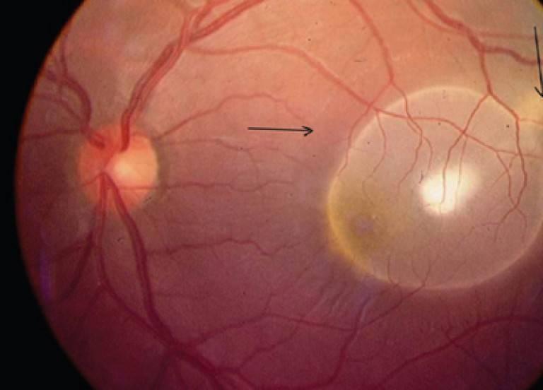 Хориоретинит глаза (хориоидит, задний увеит): что это такое, симптомы, лечение, виды (центральный, серозный, токсоплазмозный, пигментный) и прочее
