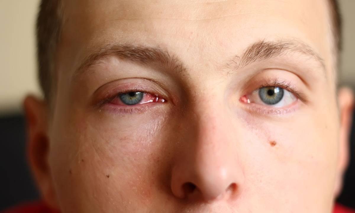 Что делать если продуло глаз и он покраснел и болит