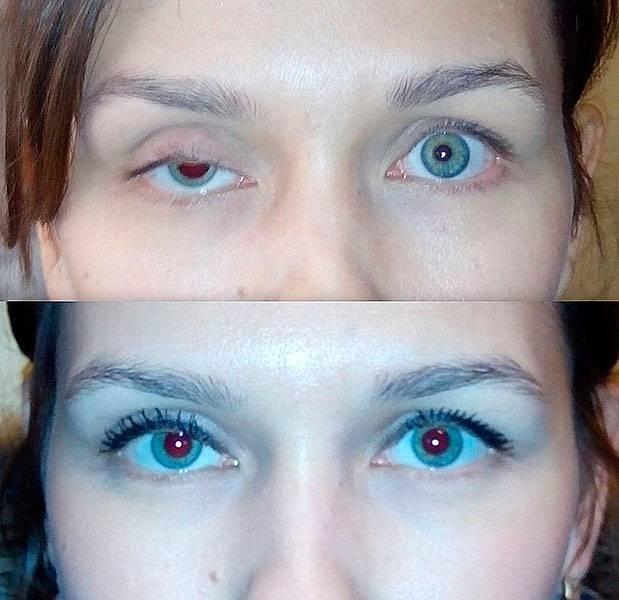 Почему у взрослого один глаз больше другого?