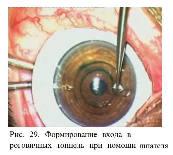 Кератоконус - костенёв сергей - официальный сайт офтальмолог москвы
