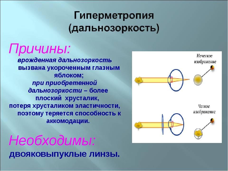 Дальнозоркость (гиперметропия) - что это, причины и лечение