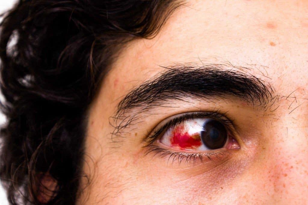 Кровоподтек в глазу: причины и лечение. сколько проходит кровоподтек в глазу