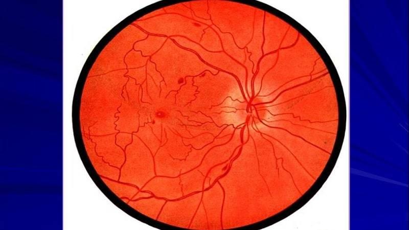 Сужение сосудов глазного дна - причины, симптомы и лечение