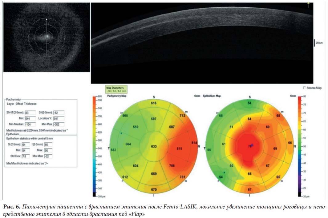 Кератометрия (офтальмометрия) глаза: показания, методика проведения и расшифровка результатов