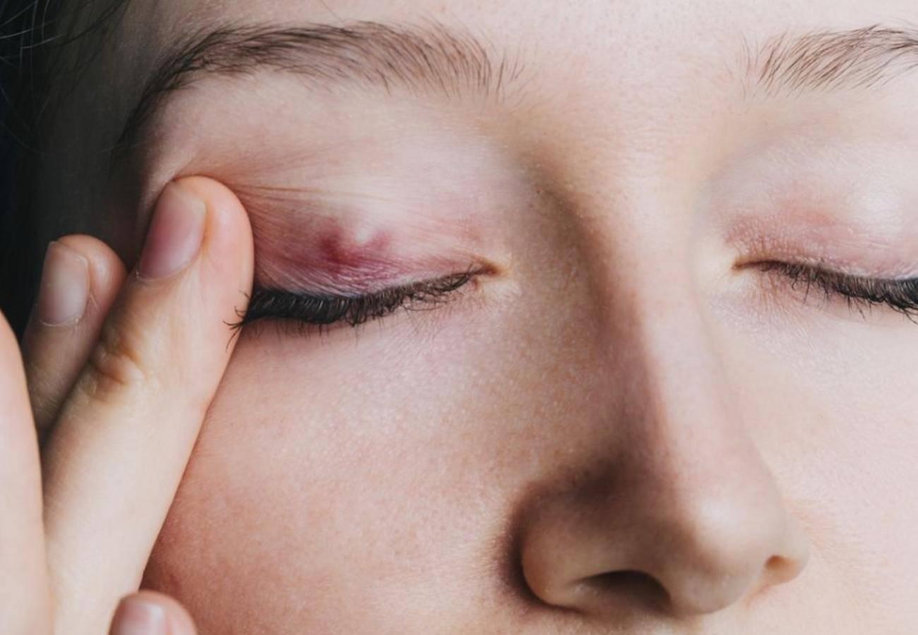 Воспаление века халязион, ответы врачей, консультация
