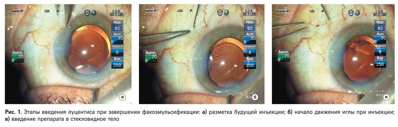 Витрэктомия: операция по удалению стекловидного тела