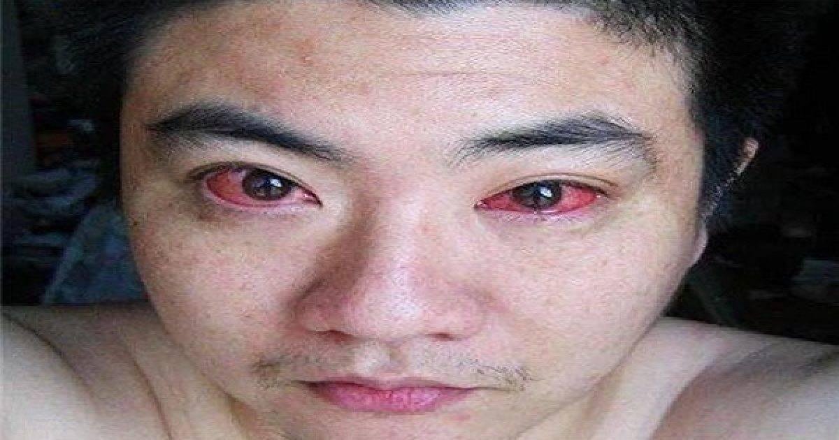 Красные глаза от компьютера что делать — красивое лицо