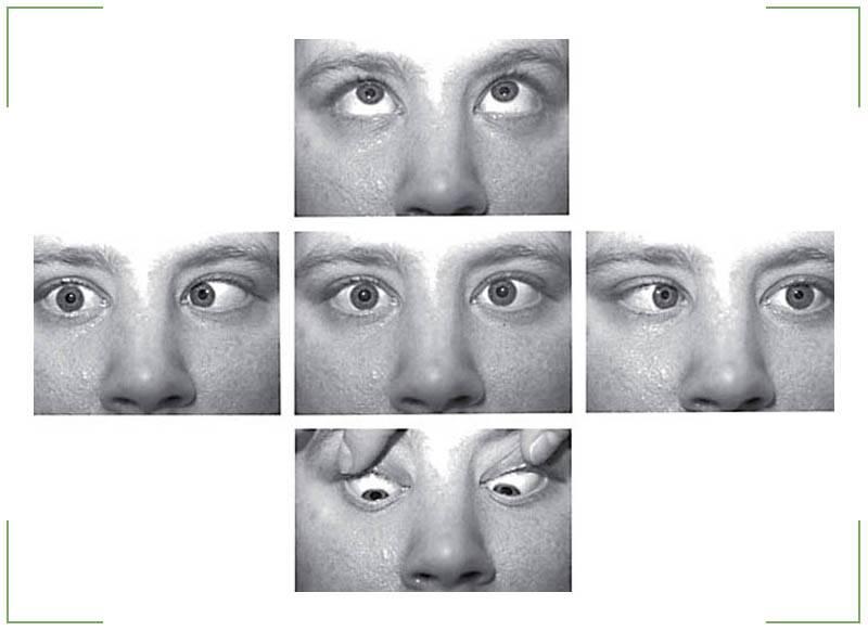 Как совладать с глазами? вертикальный нистагм: что это такое, причины развития, лечение